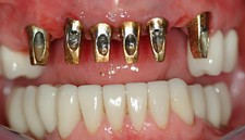maxillary bridge implants