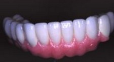 GOLD Prosthodontic Bridge