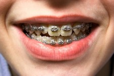 Orthodontic Treatment Closeup Photo